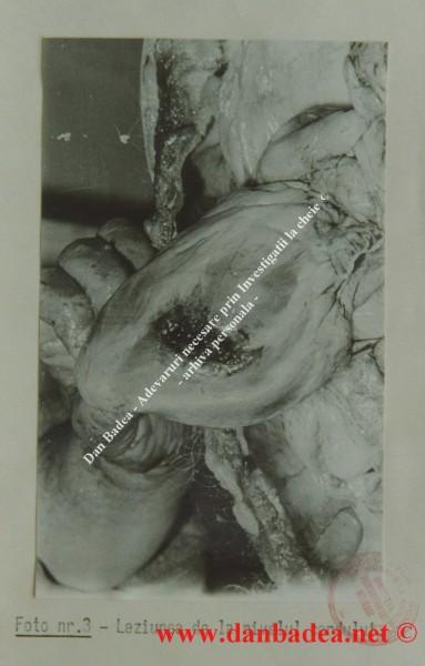 Inima generalului Milea ţinută în mână de medicul legist care a făcut autopsia